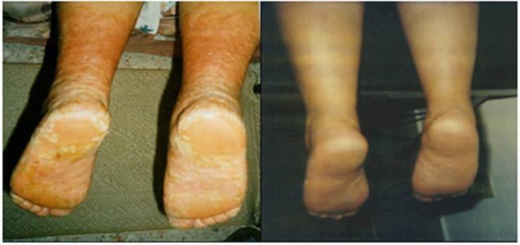 Losterin la crema a atopicheskom la dermatitis